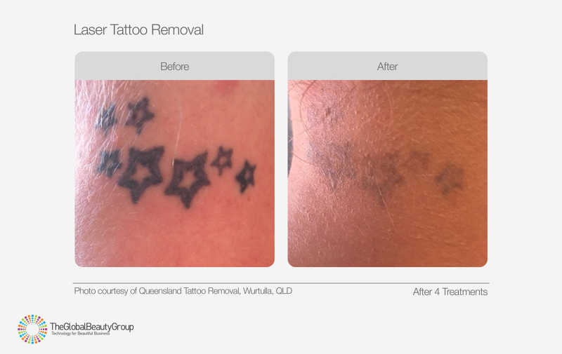 Laser Tattoo Removal Before & After 03