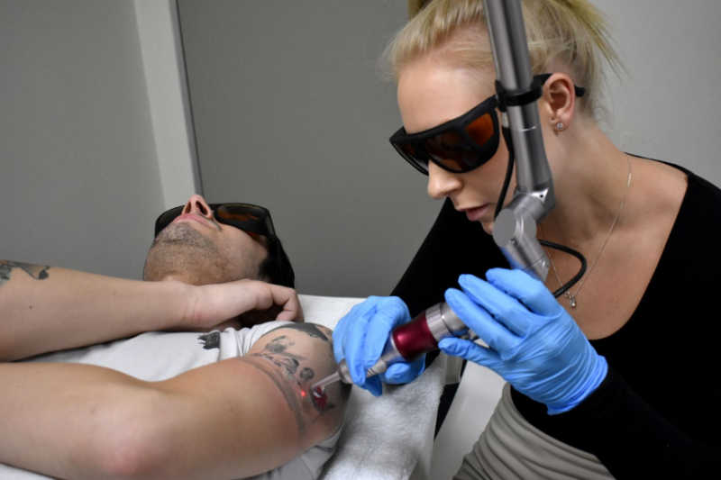 GETTING A TATTOO REMOVED