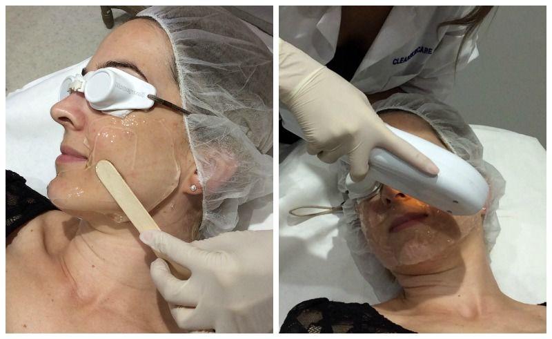 clearskincare-clinics-ipl-treatment