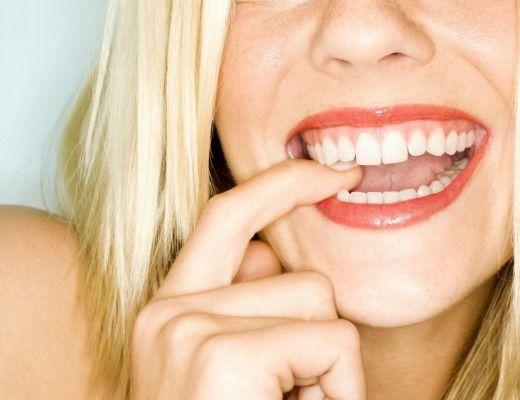 pitt street dental review