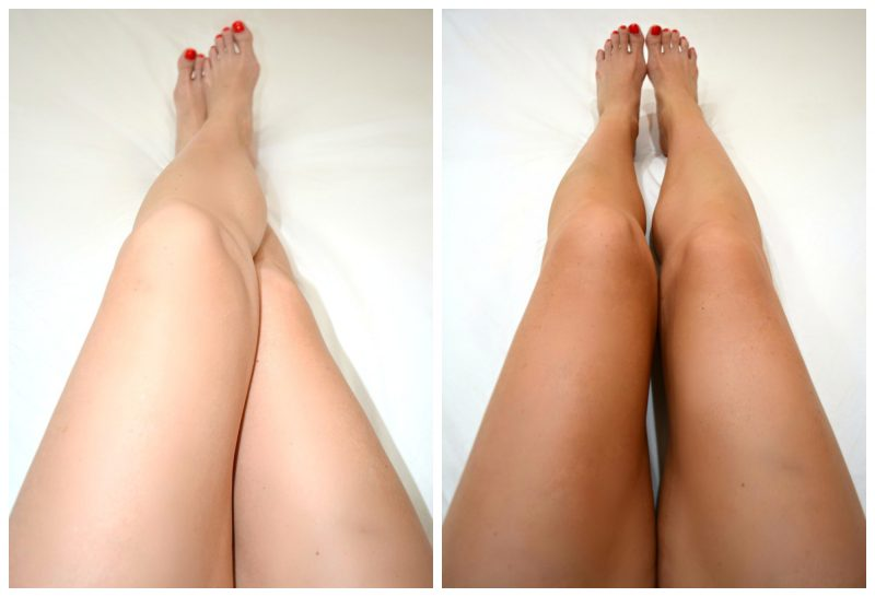 Bondi Sands Before and After