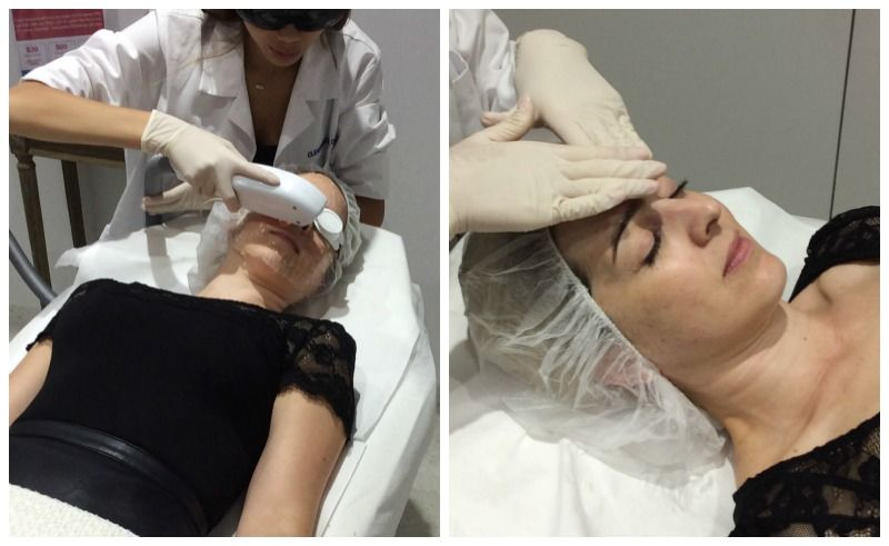clearskincare-clinics-ipl-treatment-2